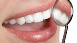 MUDr. Svatava Michalová - praktický zubní lékař Přerov